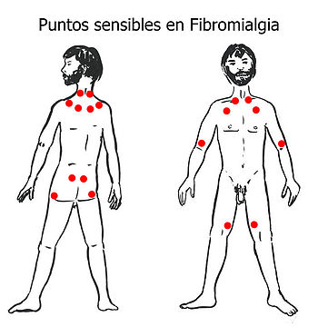 English: Tender Points in Fibromyalgia. Españo...