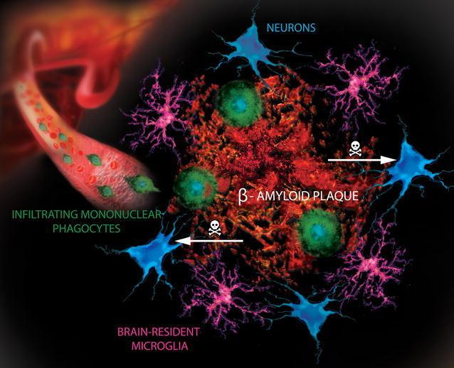 Alzheimers+Disease