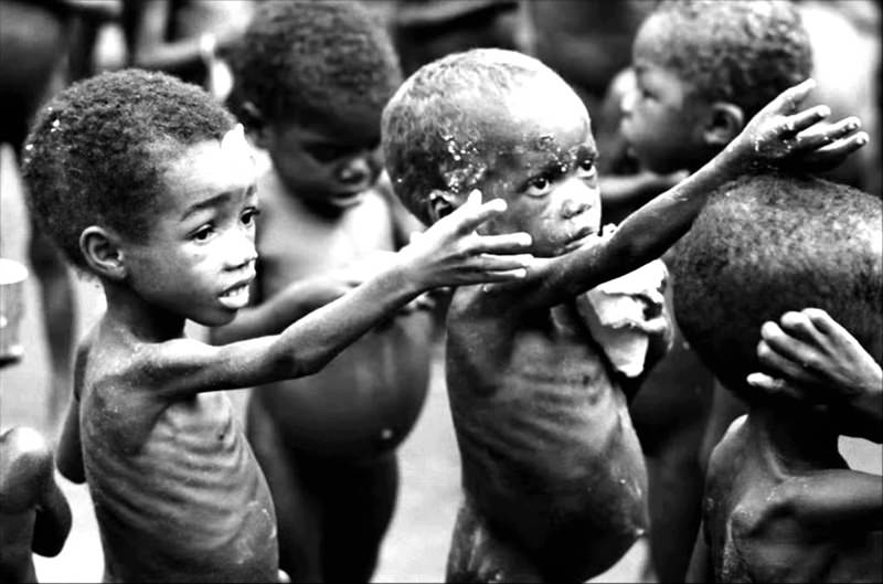 Although hunger may not always be recognizable, in many cases it is like for example the photo above you can see the children's malnutrition