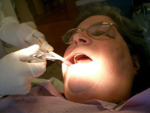 Important Details to Become a Dental Hygienist